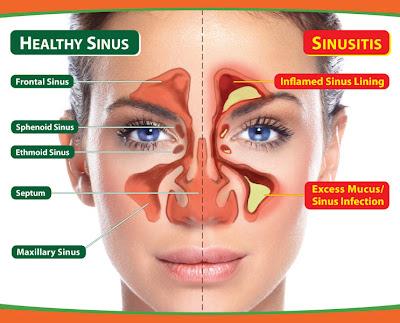 Cara Sederhana Meredakan Gangguan Sinusitis