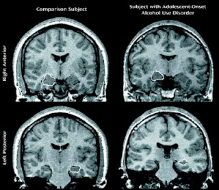 Psychiatry and Society in Pune: Neurotoxic effects of ...