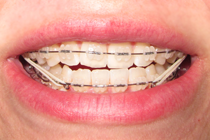 How To Fix An Underbite http://saybraces.blogspot.com/2011_02_01_archive.html