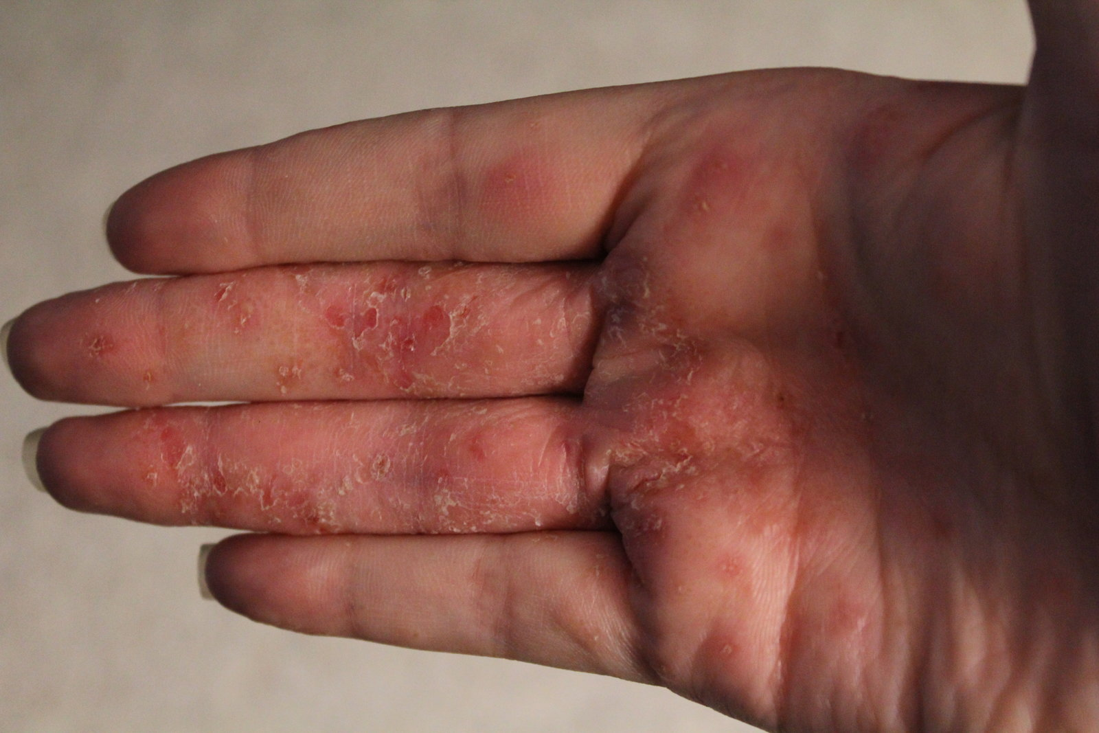 Dyshidrosis Symptoms and causes - Mayo Clinic