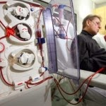Side Effects of Peritoneal Dialysis & hemodialysis