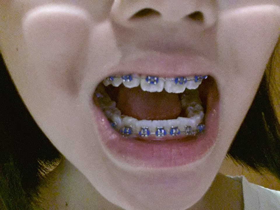 Understanding The Best And Suitable Color Of Your Braces