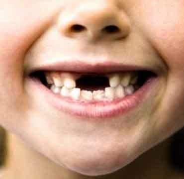 dientes de leche, caida dientes de leche