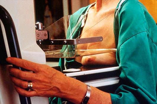 Как делается маммография молочных желез фото
