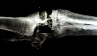 osteoartrosis, inestabilidad