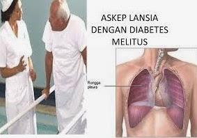 Asuhan Keperawatan Gerontik Diabetes Melitus