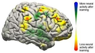 This image shows the changes that took place in the brain for all patients participating in the study using a brain-computer interface. Changes in activity were distributed widely throughout the brain.