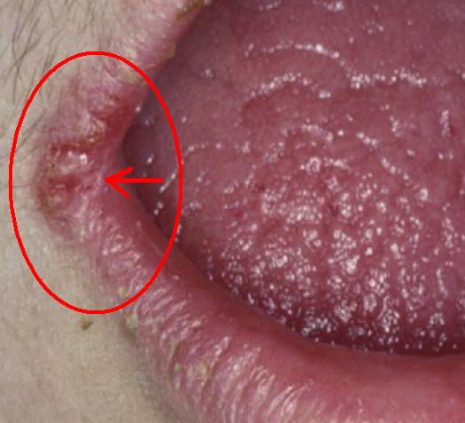 cara mengobati luka pada sudut bibir Angular Cheilitis