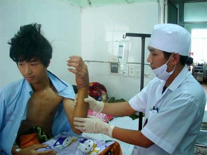 Gia Lai: Bệnh viện Quân y 211 - Nối thành công bàn tay bị đứt lìa