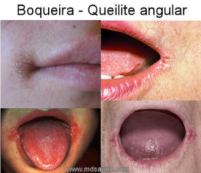 Fotos de boqueira - Queilite angular.
