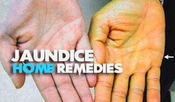Home remedies to cure jaundice in adult