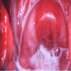 Ichy vaginale gelbe Sekretion