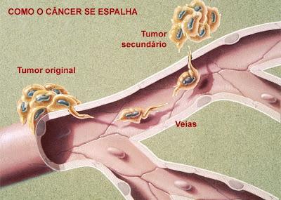 Como o câncer se espalha