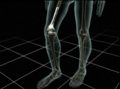 Artificial bones