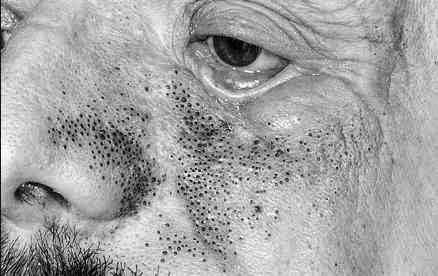 komedo di hidung