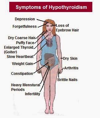 suplemen shaklee untuk hipothyroid
