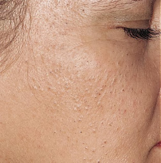 Important Tips for Milia Treatment