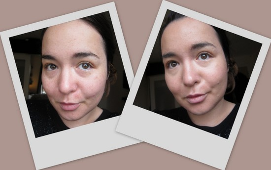 Before and After Photos with Dr Jart Water Fuse BB Cream