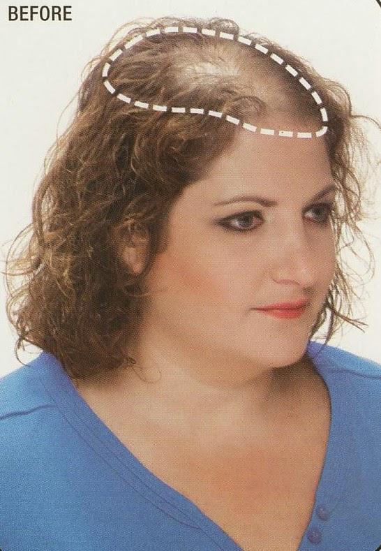 Hair loss underactive thyroid