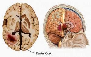 obat tumor otak alami stadium 1, Obat Tumor Otak, obat alami tumor otak