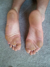 Barefoot Toes After Marathon