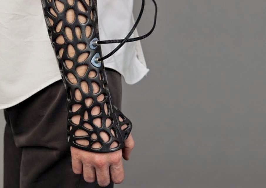 46 Unbelievable Photos That Will Shock You - This 3D-Printed Cast Uses Ultrasound to Heal Bones 40% Faster