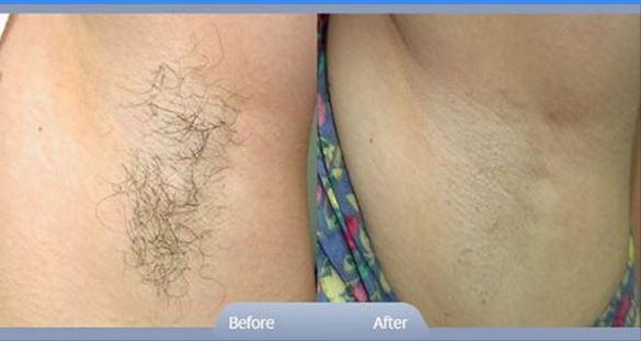 نصائح لحلاقة شعر المناطق الحساسة بطريقة آمنة