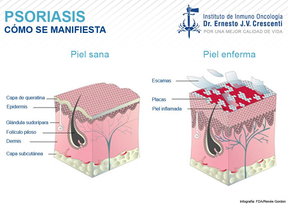 Que se distingue rosado priva de la psoriasis