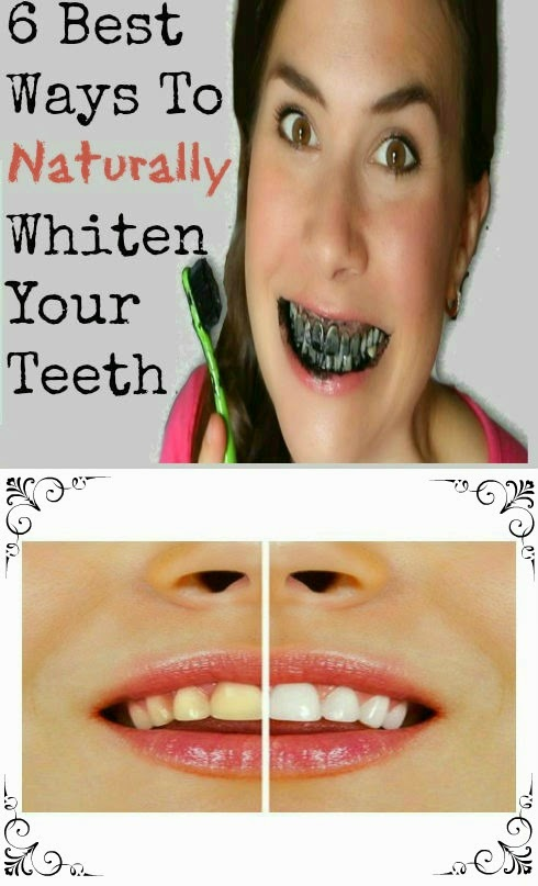 6 Best Ways To Naturally Whiten Your Teeth Natural Tooth Whitening