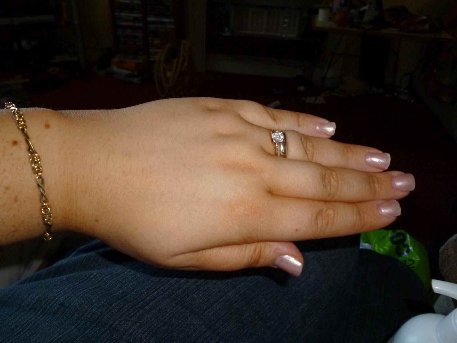 my hands are darker than my skin