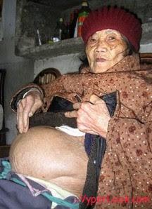 Heboooh... Kisah Seorang Wanita yang Melahirkan Mummy
