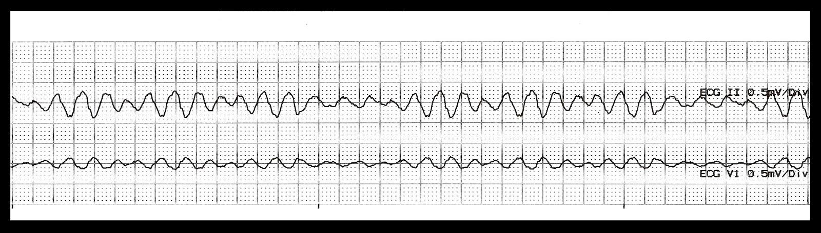 Polymorphic Ventricular Tachycardia Vs Torsades De Pointes ...