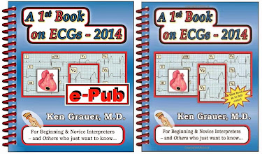 A 1st Book on ECGs - 2014