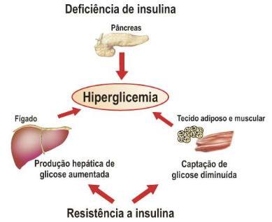 Resistência a Insulina e seus fatores   Obesidade, uma