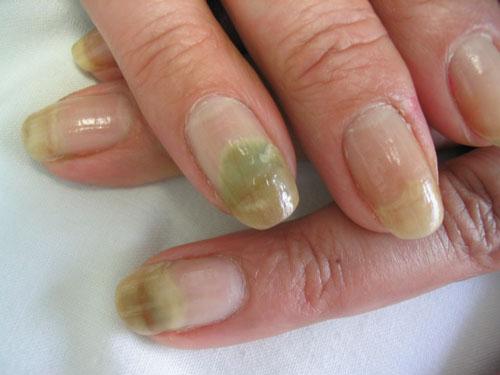 Si cura el peróxido el hongo las uñas