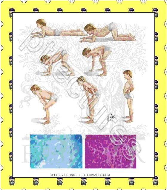 Lectures in Physical Therapy: Duchenne muscular dystrophy