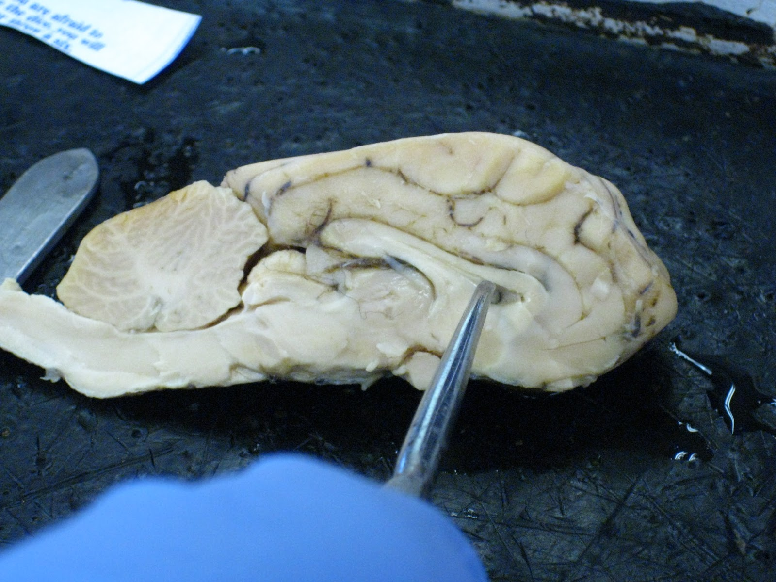 Sheep for Brains: Sheep Brain - Internal gross anatomy