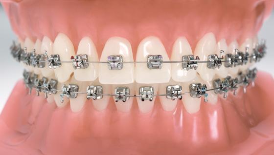 Orosalud cl nicas odontol gicas la ortodoncia est tica for W de porter ortodoncia