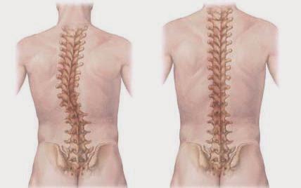 Jenis Penyakit Dan Kelainan Pada Tulang