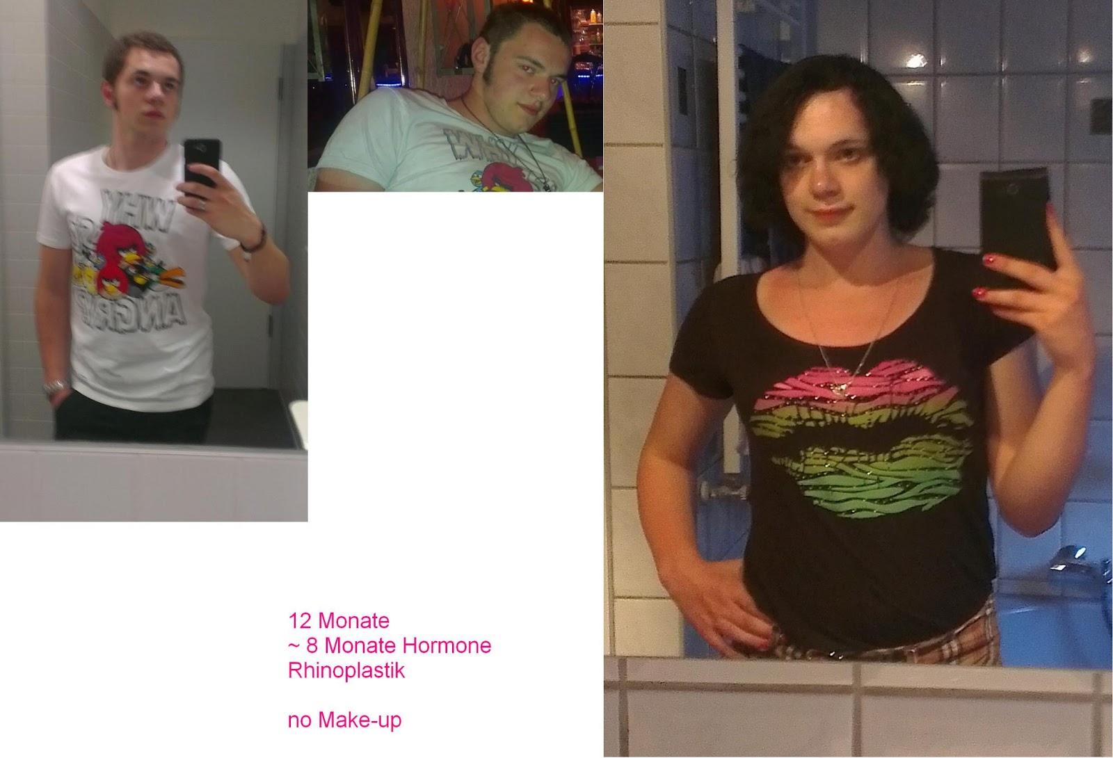 transsexualität hormone 8 Monate