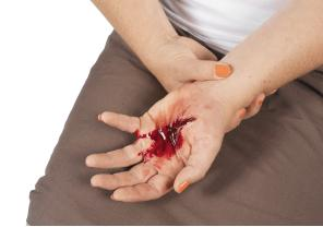 Bleeding - Natural Remedies ~ Medicinal Words