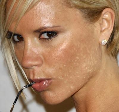 Spot-Acne-On-Face