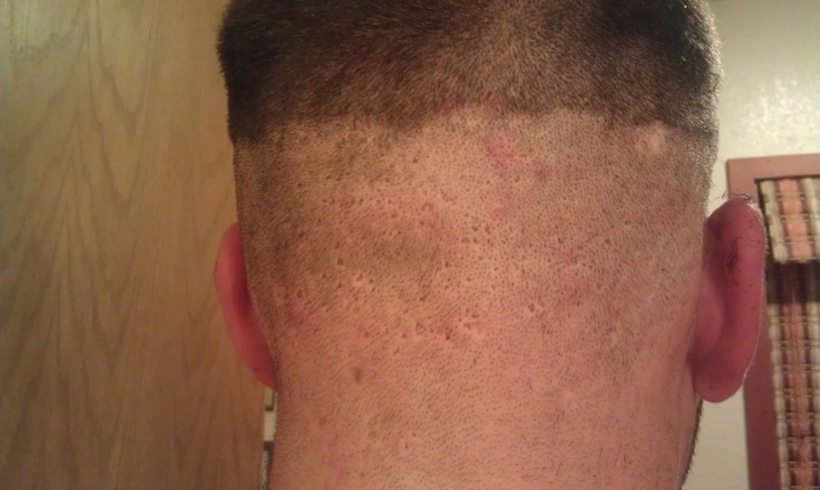 ... Bad Haircut , Terrible Fade Haircut , Ugly Fade Haircut , Bad Haircuts
