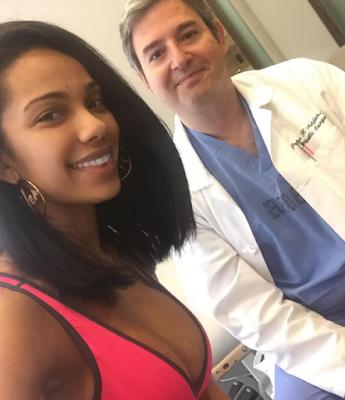 erica mena breast implants