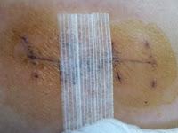 写真:抜糸直後の手術痕