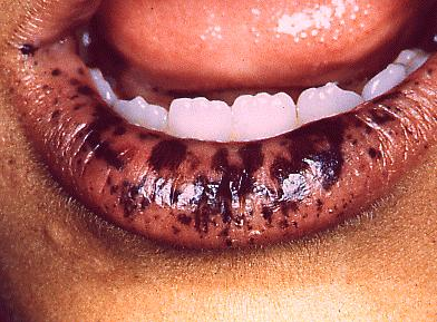 Pigmentation and Discoloration of Oral and Facial Tissues ...