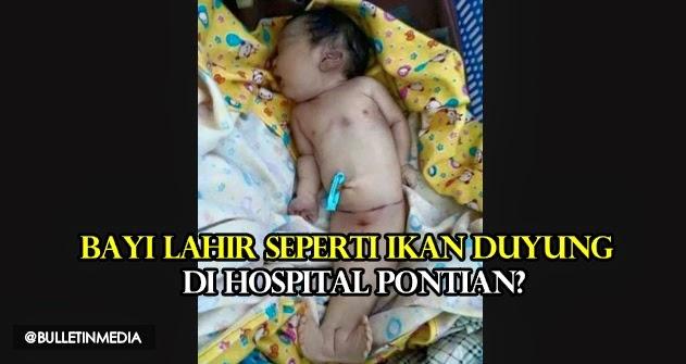 Bayi lahir seperti ikan duyung di Hospital Pontian