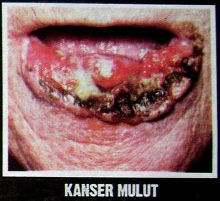 Penyakit Akibat Merokok