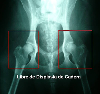 displasia de cadera libre