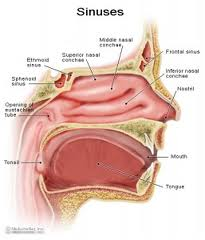 pengobatan radang sinusitis